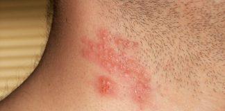 Herpes Zoster, Fuoco di Sant'Antonio: aumenta rischi infarto e ictus