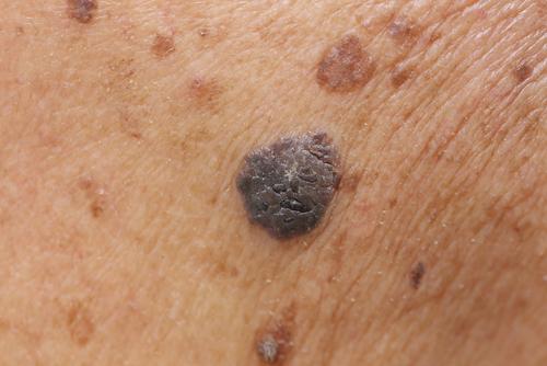 Melanoma, scoperto in Italia il farmaco per contrastare il tumore