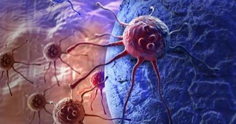 """Scoperto il """"nemico del cancro"""": blocca 9 tumori su 10"""