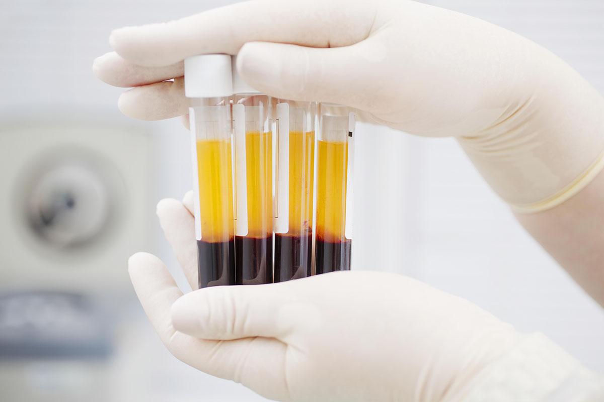 Covid, il plasma iperimmune evita forme gravi della malattia